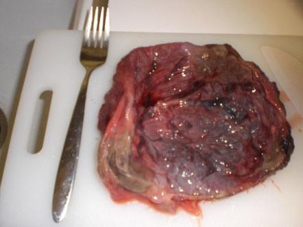 Comer placenta